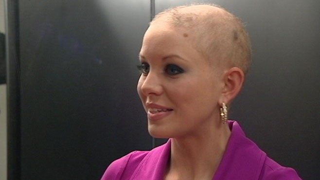 """VIDEO: Kayla Martell copes with hair loss; """"I was given this for a reason."""""""