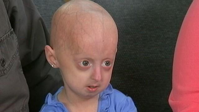Adore her bald head teen porn