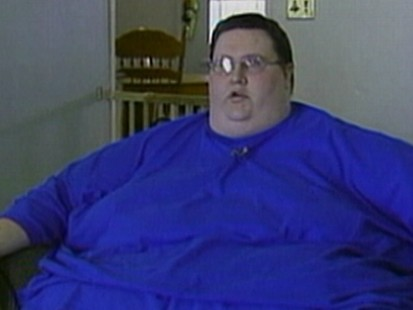Obese Man Drops 400 lbs Without Surgery