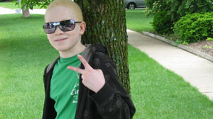 Albinism: Caught Between Dark and Light