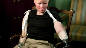 PHOTO Mariamu Staford, 28, was the victim of a brutal albino attack in Tanzania.