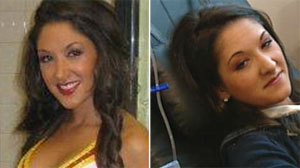 Medical Mystery or Hoax: Did Cheerleader Fake a Muscle Disorder?