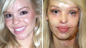 Model Burned in Vicious Sulfuric Acid Attack