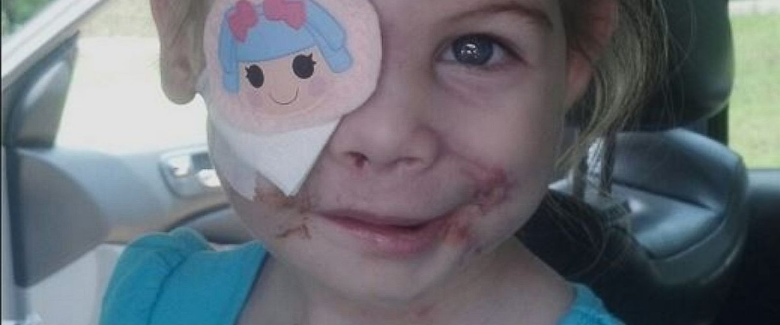 PHOTO: KFC donates $30K to help 3-year-old dog attack victim, Victoria Wilcher, after she was allegedly asked to leave a KFC because of her scars.