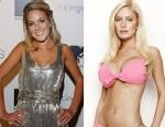 Heidi Montags Plastic Surgery Transformation