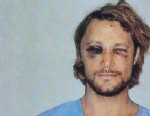 PHOTO: These are the brutal injuries Gabriel Aubry claims he suffered at the hands of Halle Berrys fiance Olivier Martinez on Nov. 22, 2012, Los Angeles.
