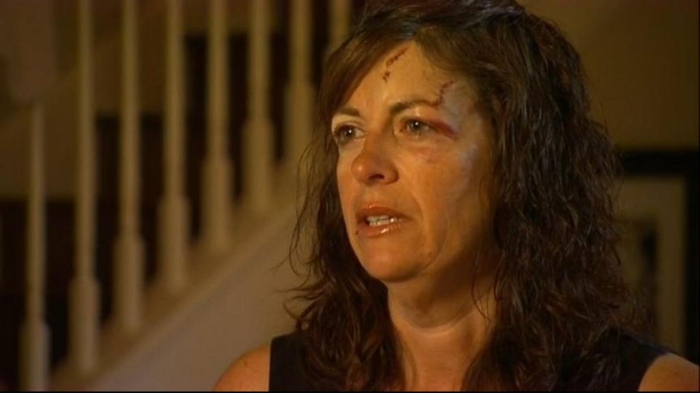 VIDEO: Bear Attack Victim Left Horrifying iPhone Message for Husband