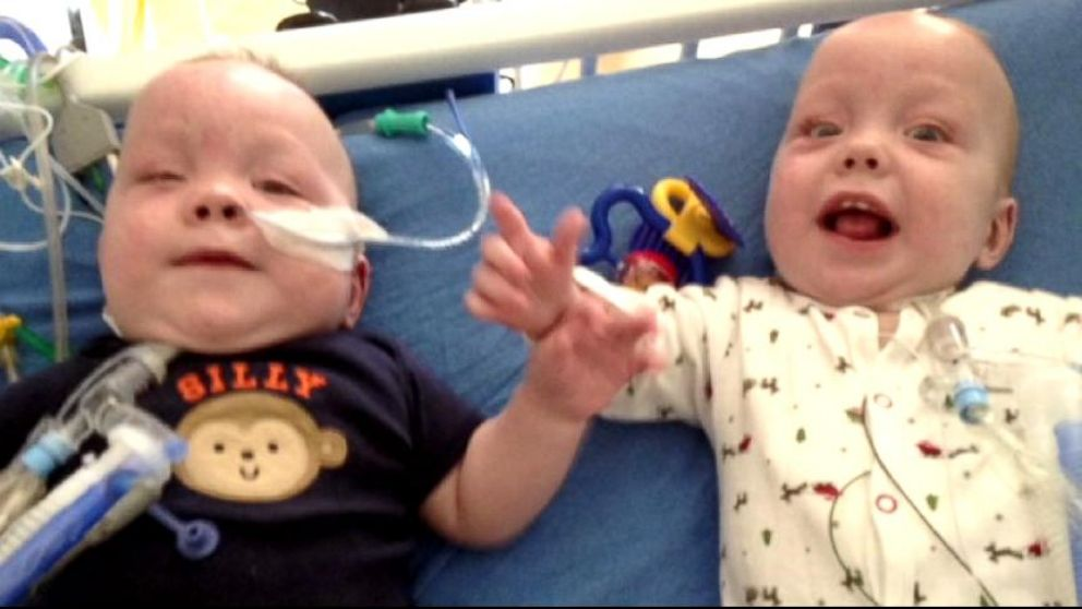 VIDEO: Owen and Emmett Ezell, who once shared a liver and intestines, are on the road to recovery.