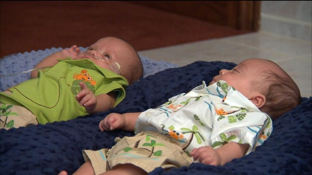 VIDEO: Mother Gives Birth to Twins 39 Days Apart