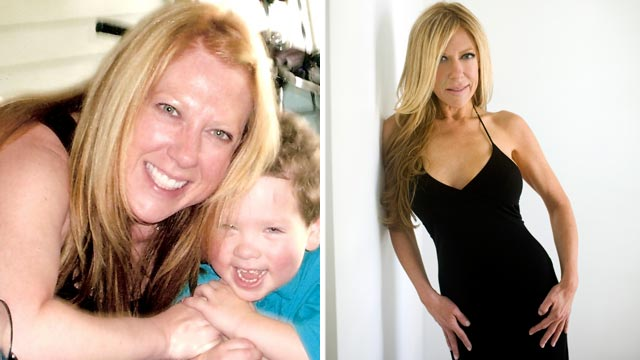 PHOTO: 43 year old Alicia Hunter before,left, and after her post-divorce plastic surgery.