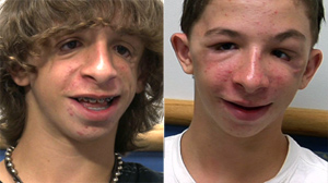 PHOTO Brad Guilkey, 15, who was born without cheekbones, is shown, left, before a surgery to help him grow cheekbones, and after, right.