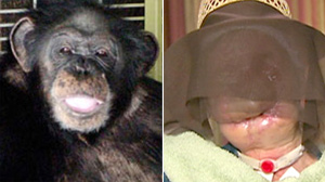 PHOTO Charla Nash, right, was attacked by her friends 200-pound chimpanzee named Travis, shown left.