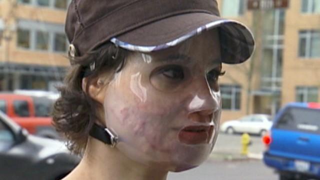 VIDEO: Acid Attack Hoax Admits Lying