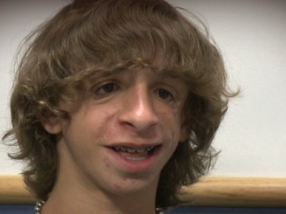 VIDEO: 15-year-olds rare genetic condition left him without some of his face bones.