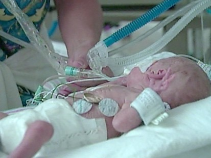 Extreme Preemies Might Have Higher Autism Risk