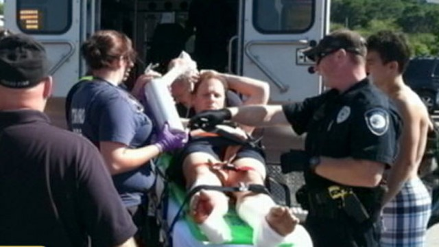 VIDEO: Many wonder whether the waters are safe after a swimmer was bitten on both legs.