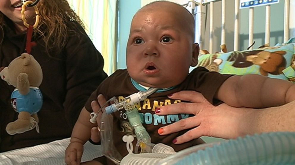 Nebraska boy with DiGeorge syndrome needs a thymus transplant which is not yet federally approved.
