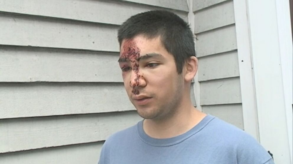 VIDEO: Patrick Luk fell several hundred feet off New Hampshires Mt. Adams before crawling to safety.