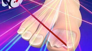 IMAGE: New laser treatment for toe fungus