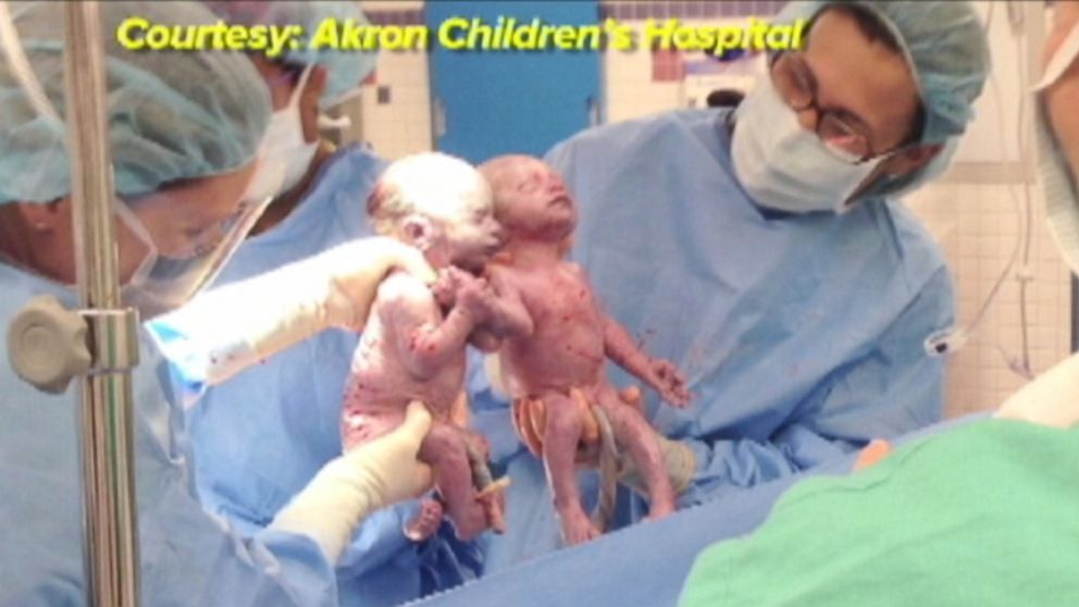 "VIDEO: Two sets of ""mono mono"" twin girls were born in one week at Akron hospital."