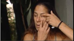 VIDEO: Katie Gaydos was mistakenly given fingernail glue instead of eye drops by her friend after a piece of debris landed in her eye.