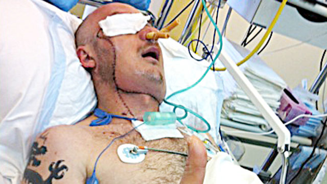 PHOTO: Polish doctors say they saved a mans life by performing a face transplant just three weeks after he was severely maimed in a workplace accident.