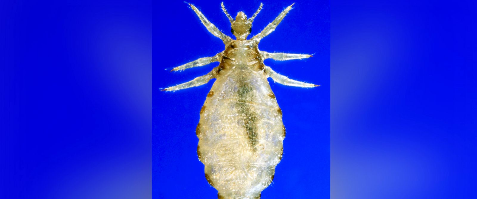 PHOTO: This 2006 photograph depicts a dorsal view of a female body louse, Pediculus humanus var. corporis.