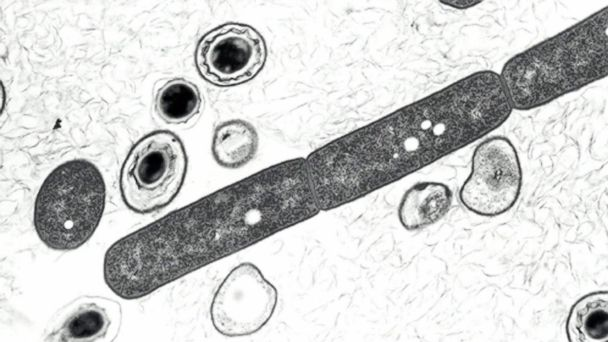 PHOTO: Bacillus anthracis vegetative cells and spores, which cause the infectious disease Anthrax, in an undated photomicrograph from the U.S Department of Defense.