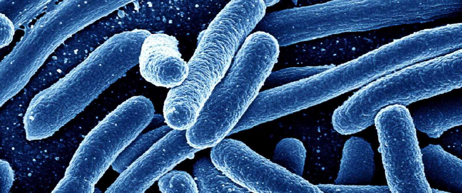 PHOTO: Bacteria is seen here in a colored scanning electron micrograph.