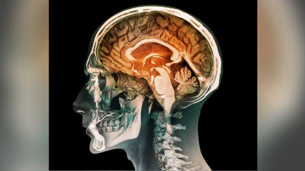 http://a.abcnews.go.com/images/Health/GTY_human_brain_mri_jt_160208_v4x3_16x9_608.jpg