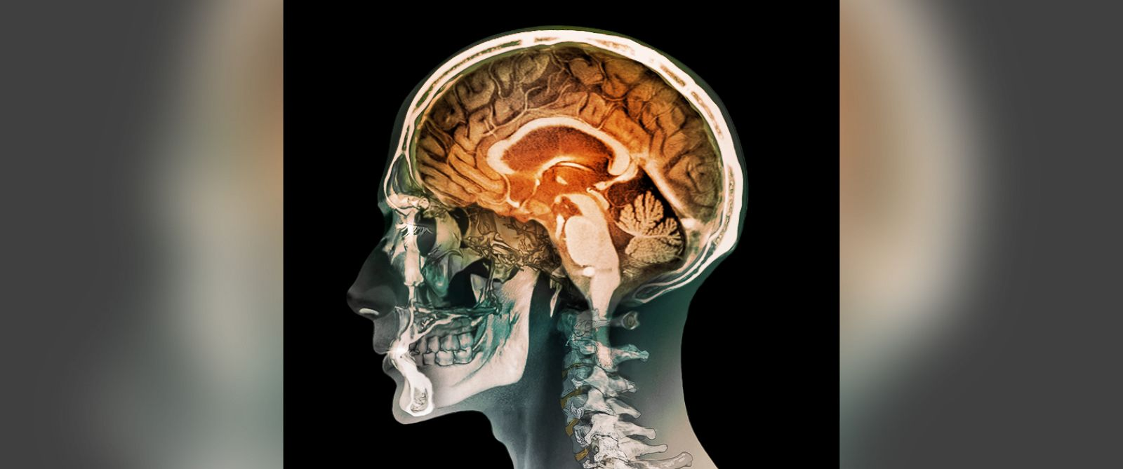 PHOTO: This undated color composite image shows a magnetic resonance imaging (MRI) scan of the brain and 2D and 3D computed tomography (CT) scans of the head and neck of a 35 year old patient.