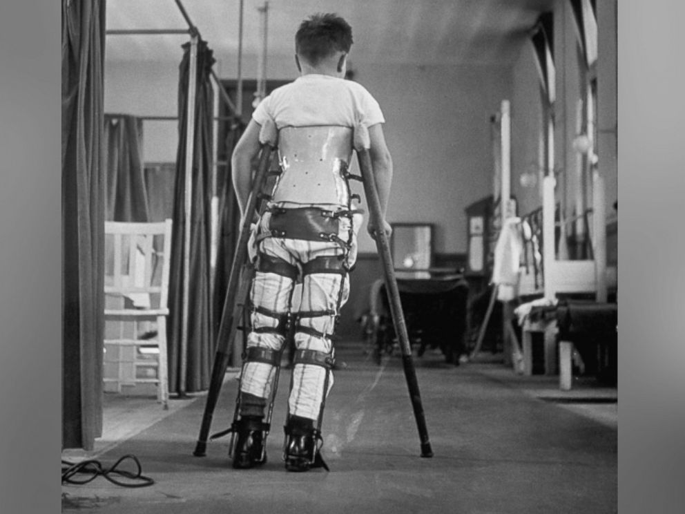 PHOTO: A child suffering from Infantile Paralysis learns to walk with the aid of a special support, at Queen Marys Hospital, London, 1947.
