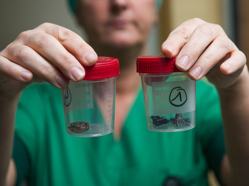 PHOTO: A nurse of the Campus Gasthuisberg UZ hospital in Leuven, Belgium, shows fragments of iron shrapnel from a nail bomb, March 24, 2016.