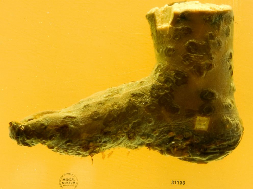 PHOTO: A preserved human foot with smallpox on exhibit at the new location of The National Museum of Health and Science in Silver Spring, MD, May 16, 2012.