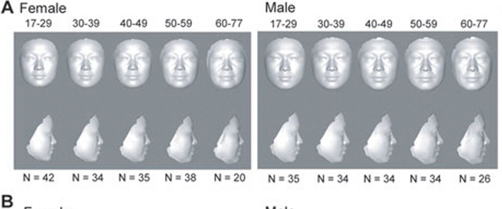 """PHOTO: Doctors are using 3-D facial imaging to discover your """"real age."""""""