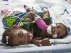 PHOTO: Formerly conjoined twins Azhari and Azhiah Jones were separated in April, 2013 at Childrens Hospital of Richmond, but Azhari died on Oct. 13, 2013.