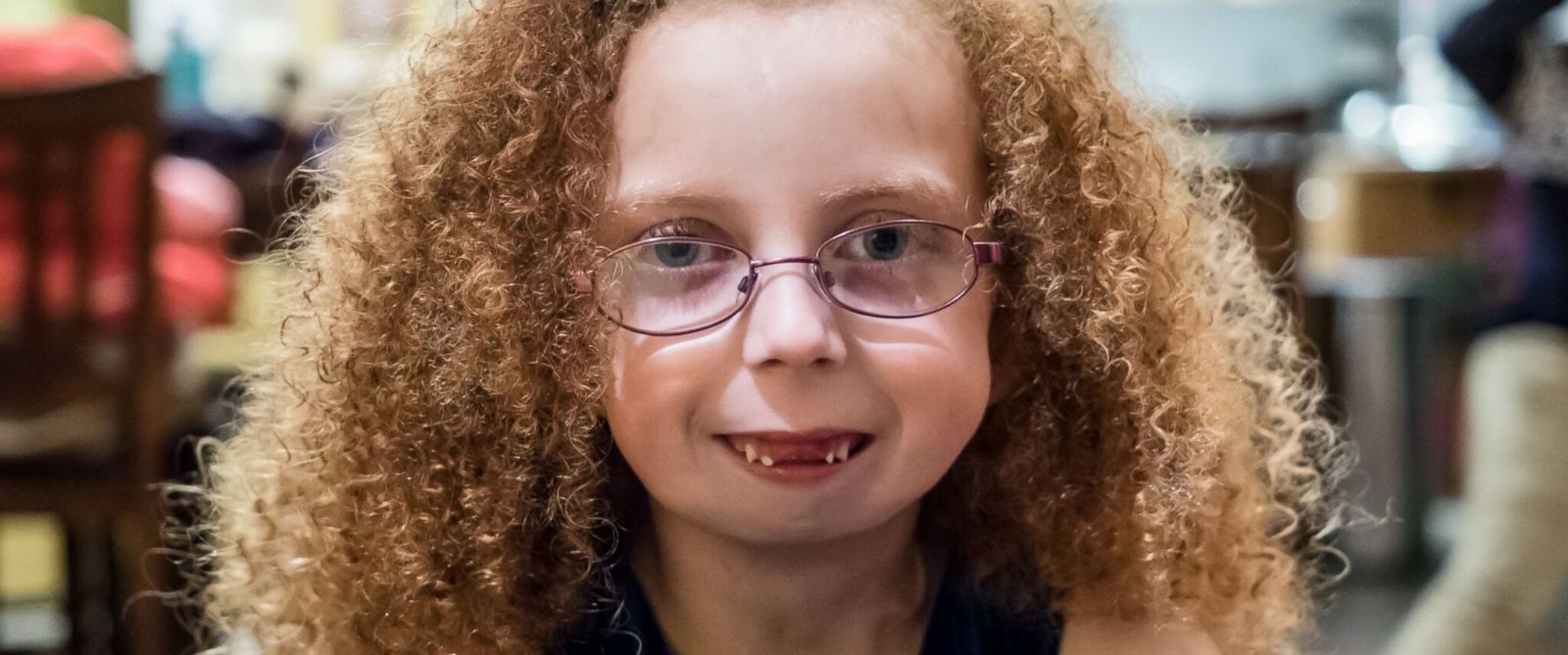 PHOTO: Alexis Melton was born with a one in a million condition that left her with almost no jaw.