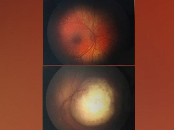 PHOTO: An image of the retinoblastoma in 4-month-old Ryder Temarantzs left eye is pictured here.