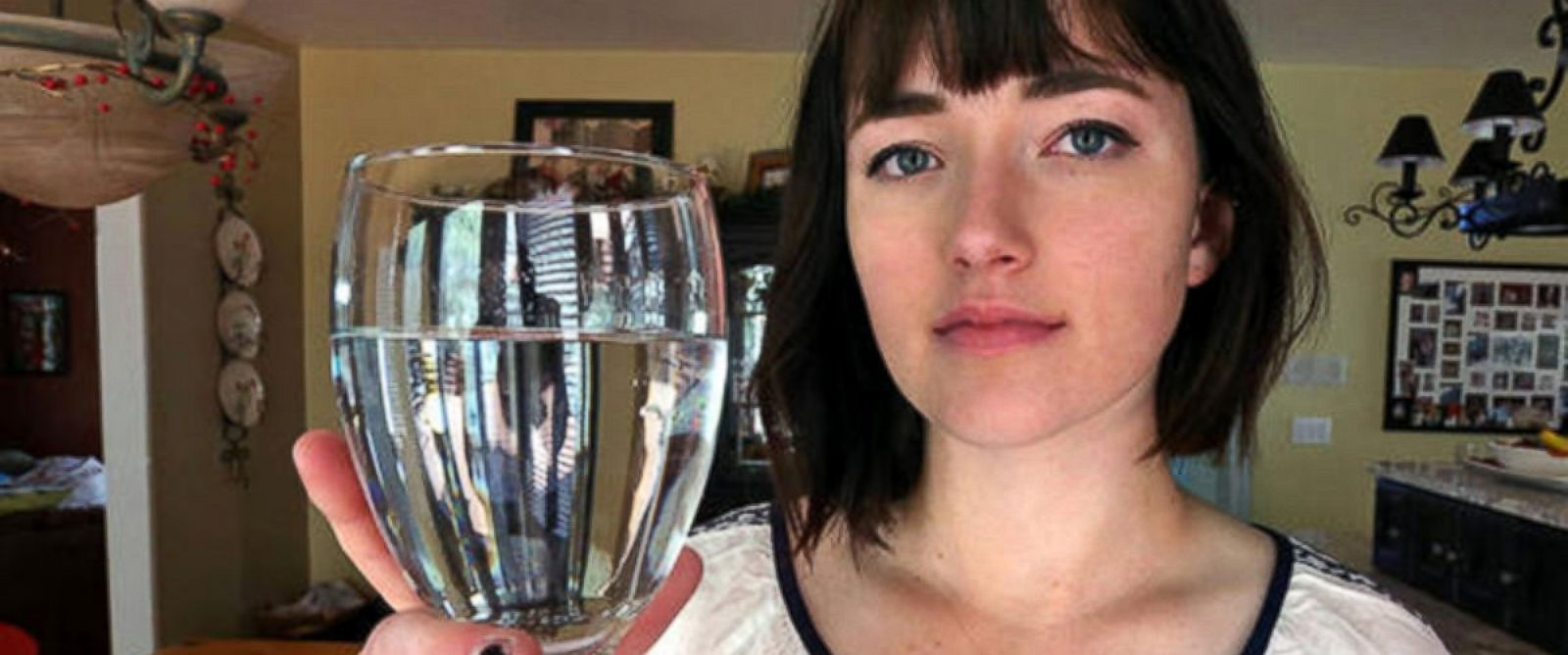 PHOTO: Alexandra Allen, a 17-year-old from Mapleton, Utah, has been diagnosed with an allergy to water.
