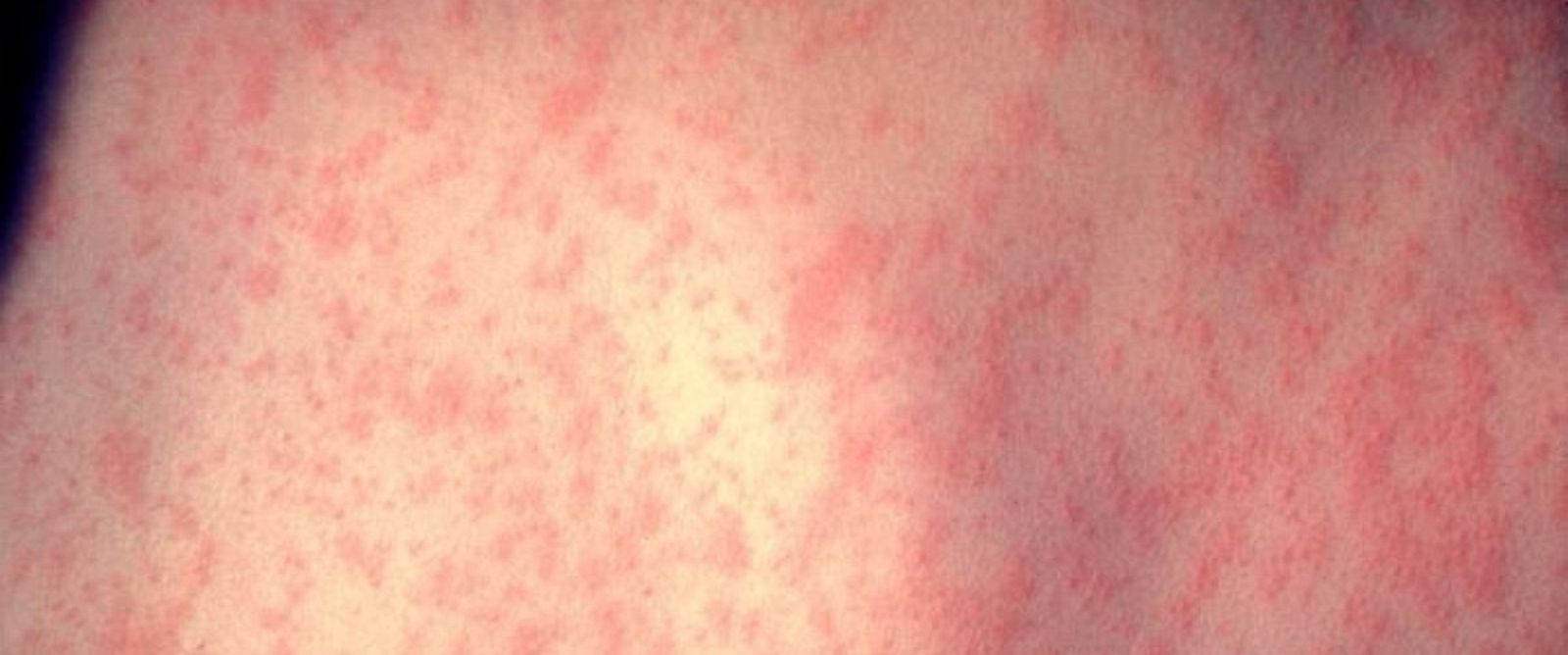 PHOTO: Measles outbreaks have occurred in multiple states since the beginning of the year.