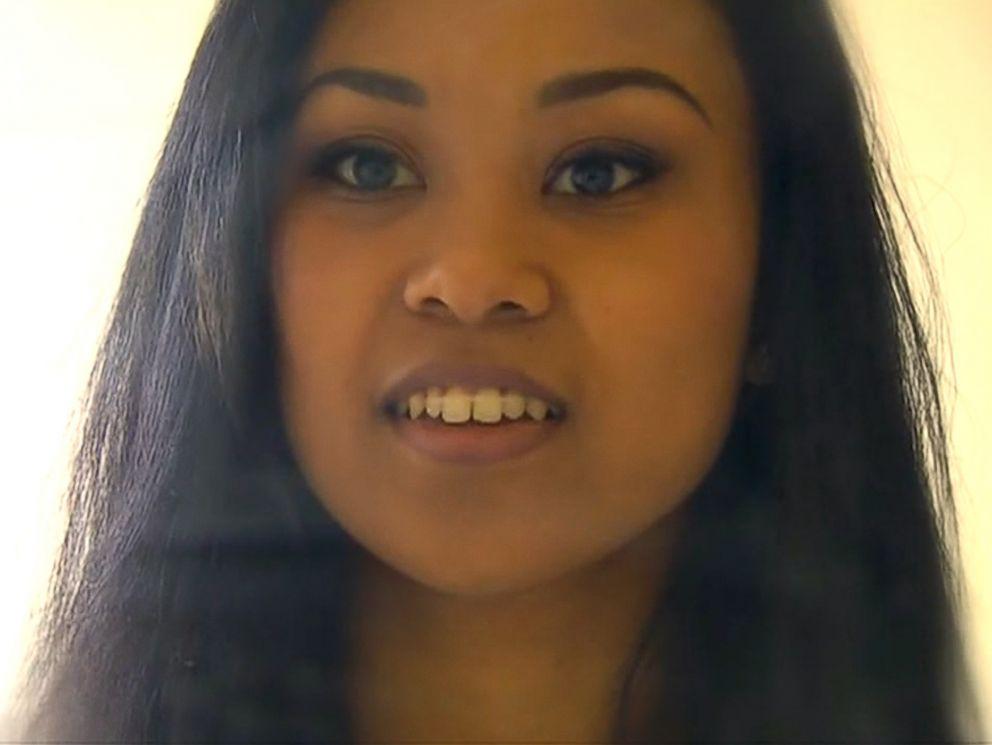 Woman Uses Rubber Bands Hair Elastics As Diy Braces Abc