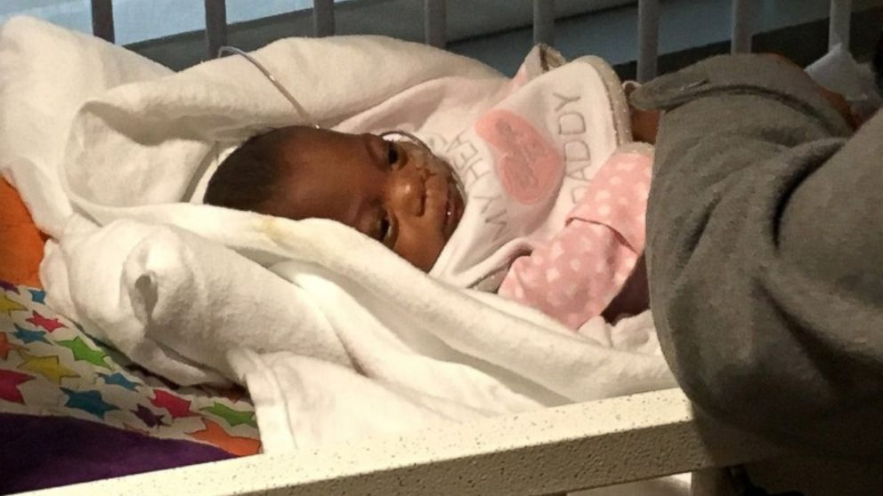 PHOTO: Baby ELayah Faith was born nearly 14 weeks premature at just 10 ounces and 10 inches long.