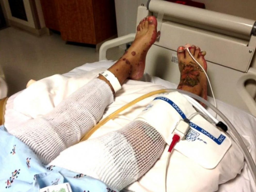PHOTO: Yaasmeen Castanada is in intensive care after having a severe allergic reaction to a mediation that caused her body to burn from the inside out.