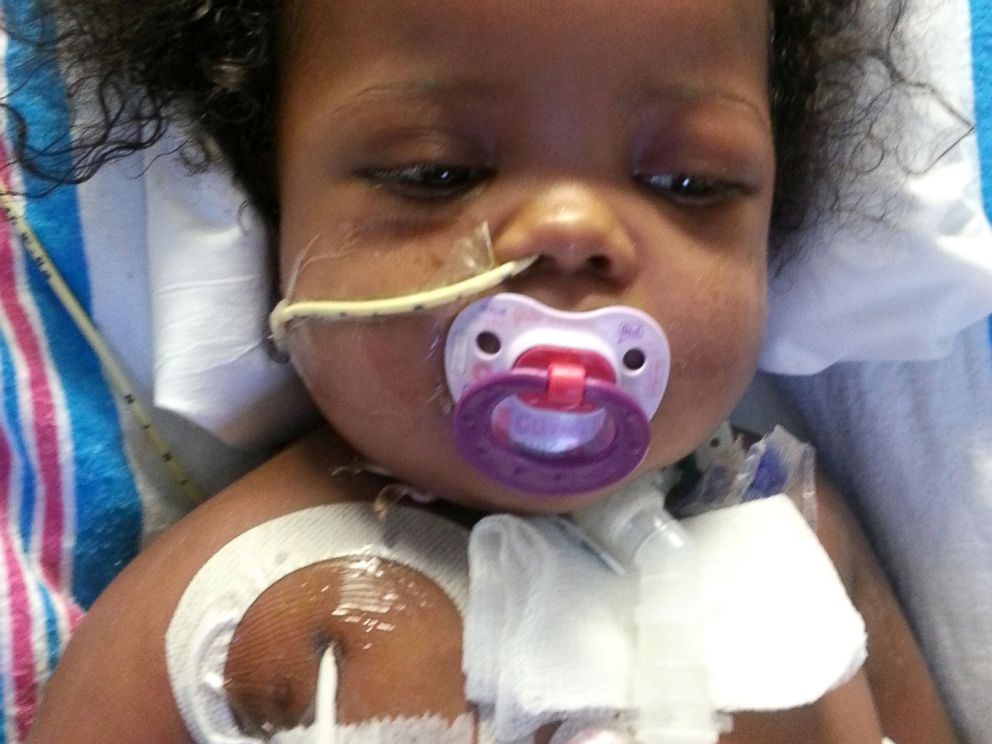 PHOTO: Anaya Richards had a tracheostomy after going into respiratory arrest in December 2012.