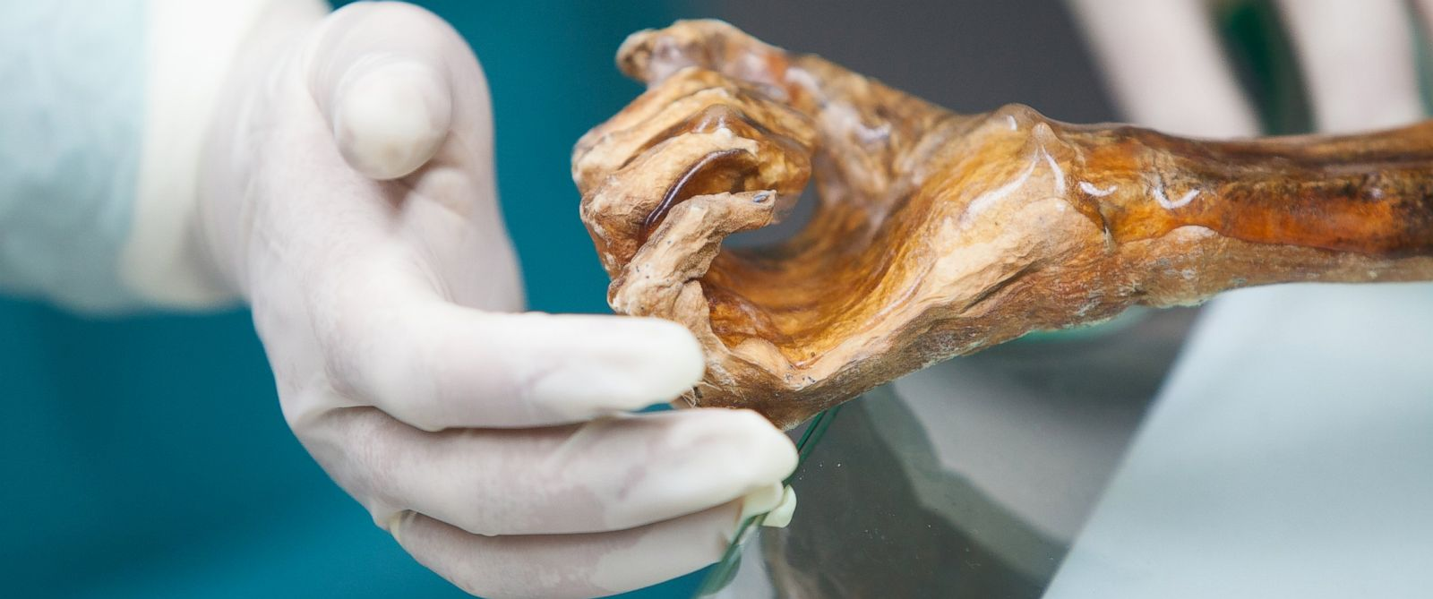 "PHOTO: A 5,300 mummy called ""Iceman"" has shed new light on human evoultion and migration."