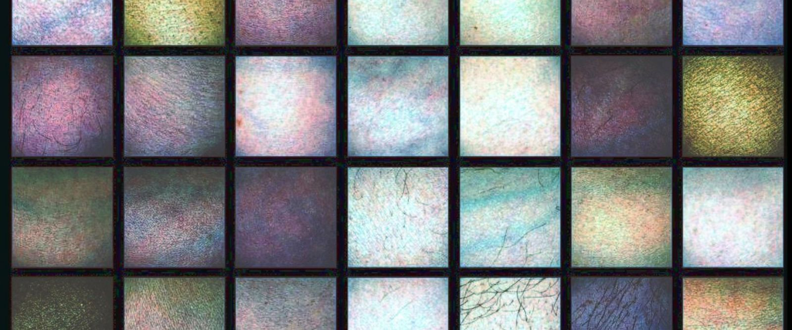 PHOTO: Researchers are examining the appearance of skin under light invisible to the human eye.