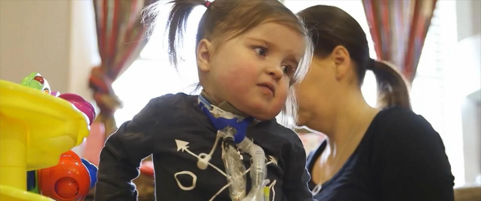 PHOTO:Zoey Jones is back home after having multiple surgeries to fix a heart defect.