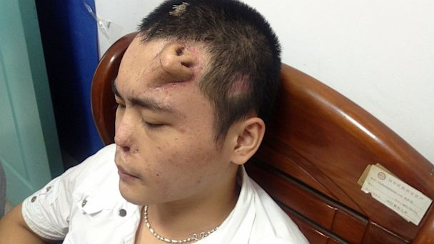 PHOTO: A new nose, grown by surgeons on Xiaolians forehead