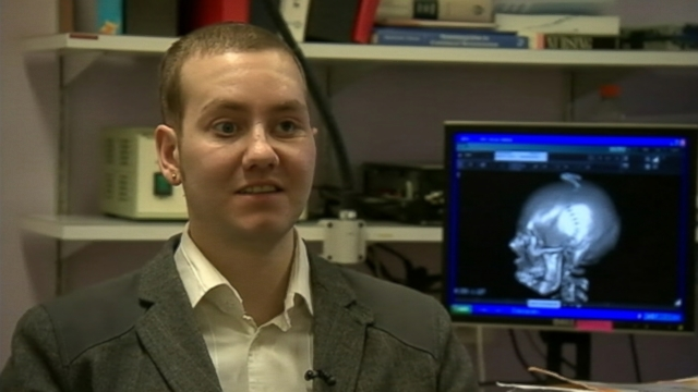 VIDEO: Stephen Power, 29, broke his facial bones and skull in a 2012 crash.