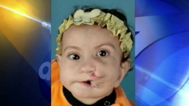 PHOTO: Rokaya Mohamed of Egypt was born with two full mouths. Last week, she underwent surgery at Childrens Hospital of Los Angeles to correct the condition.